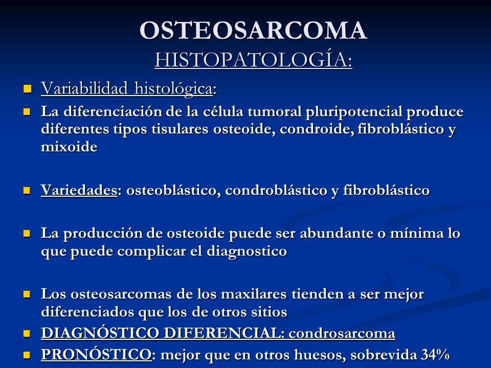 OSTEOSARCOMA HISTOPATOLOGÍA: Variabilidad histológica: Variabilidad histológica: La diferenciación de la célula tumoral pluripotencial produce diferen