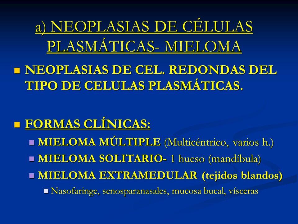 a) NEOPLASIAS DE CÉLULAS PLASMÁTICAS- MIELOMA NEOPLASIAS DE CEL. REDONDAS DEL TIPO DE CELULAS PLASMÁTICAS. NEOPLASIAS DE CEL. REDONDAS DEL TIPO DE CEL