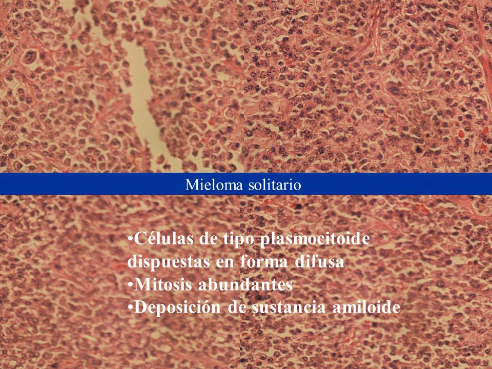 Mieloma solitario Células de tipo plasmocitoide dispuestas en forma difusa Mitosis abundantes Deposición de sustancia amiloide