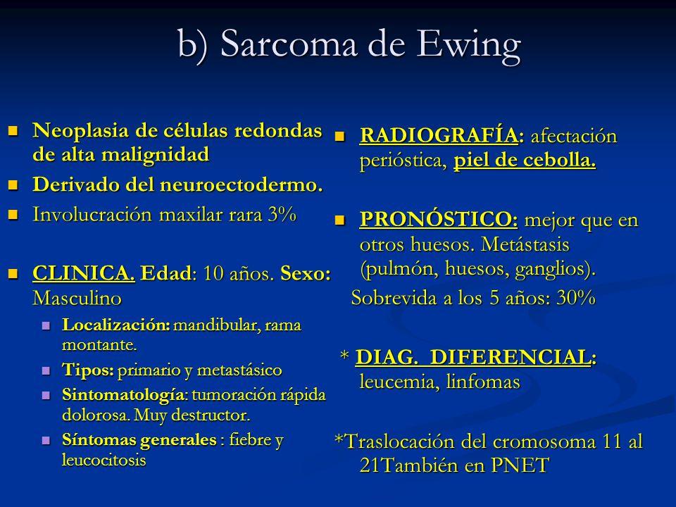 b) Sarcoma de Ewing Neoplasia de células redondas de alta malignidad Neoplasia de células redondas de alta malignidad Derivado del neuroectodermo. Der