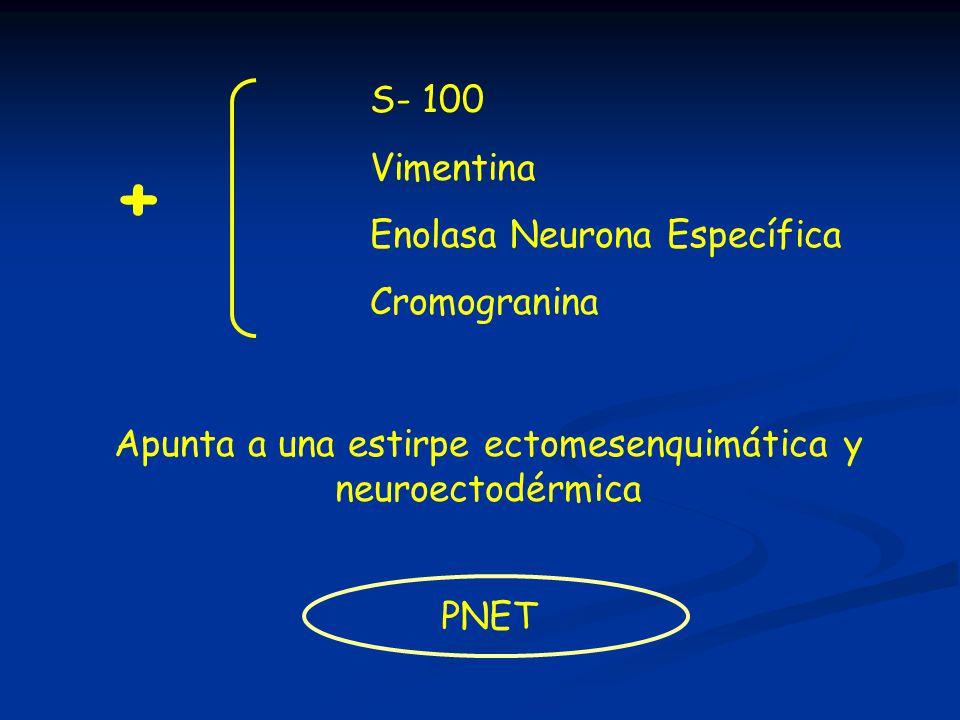 + S- 100 Vimentina Enolasa Neurona Específica Cromogranina Apunta a una estirpe ectomesenquimática y neuroectodérmica PNET