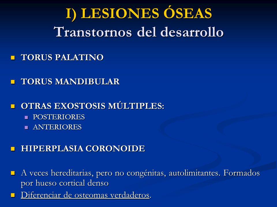 I) LESIONES ÓSEAS Transtornos del desarrollo TORUS PALATINO TORUS PALATINO TORUS MANDIBULAR TORUS MANDIBULAR OTRAS EXOSTOSIS MÚLTIPLES: OTRAS EXOSTOSI