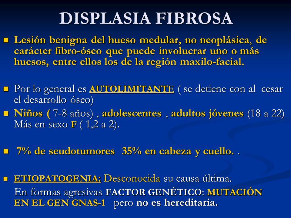 DISPLASIA FIBROSA Lesión benigna del hueso medular, no neoplásica, de carácter fibro-óseo que puede involucrar uno o más huesos, entre ellos los de la