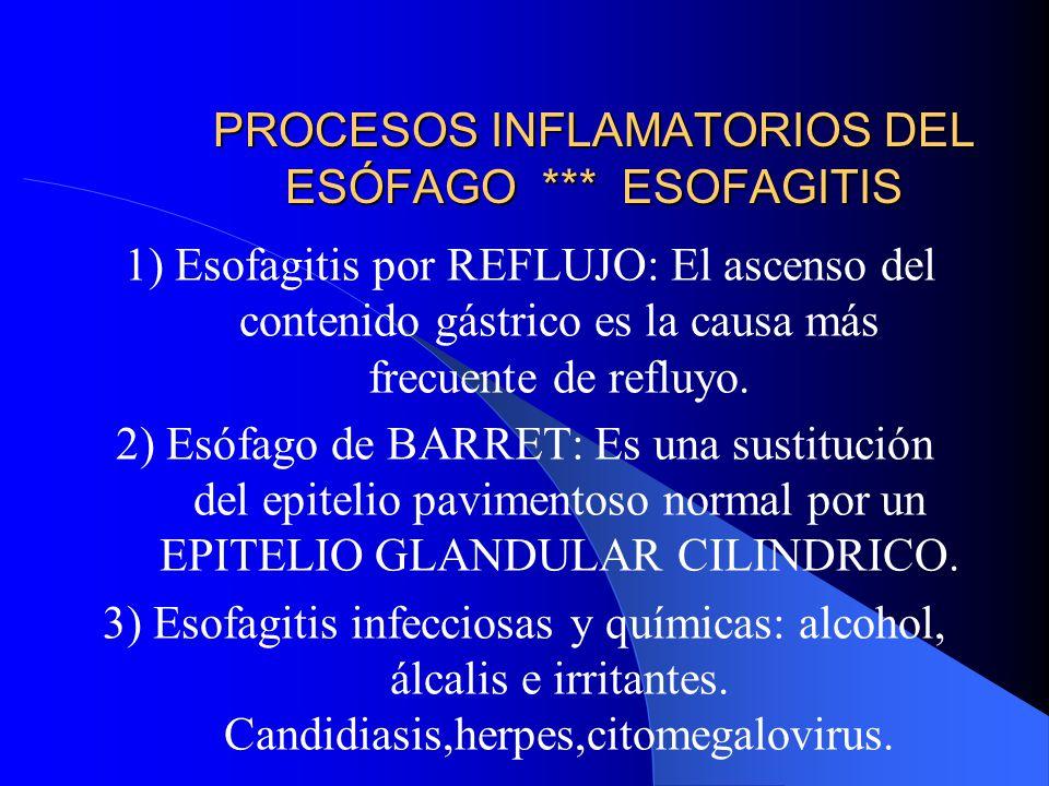 PROCESOS INFLAMATORIOS DEL ESÓFAGO *** ESOFAGITIS 1) Esofagitis por REFLUJO: El ascenso del contenido gástrico es la causa más frecuente de refluyo. 2