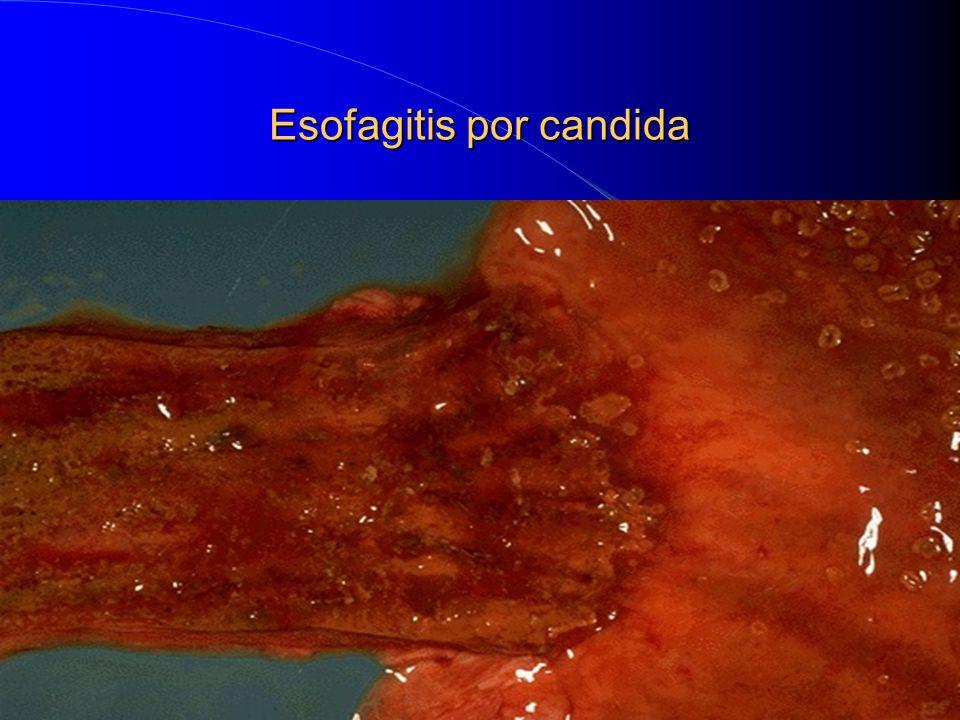 Esofagitis por candida