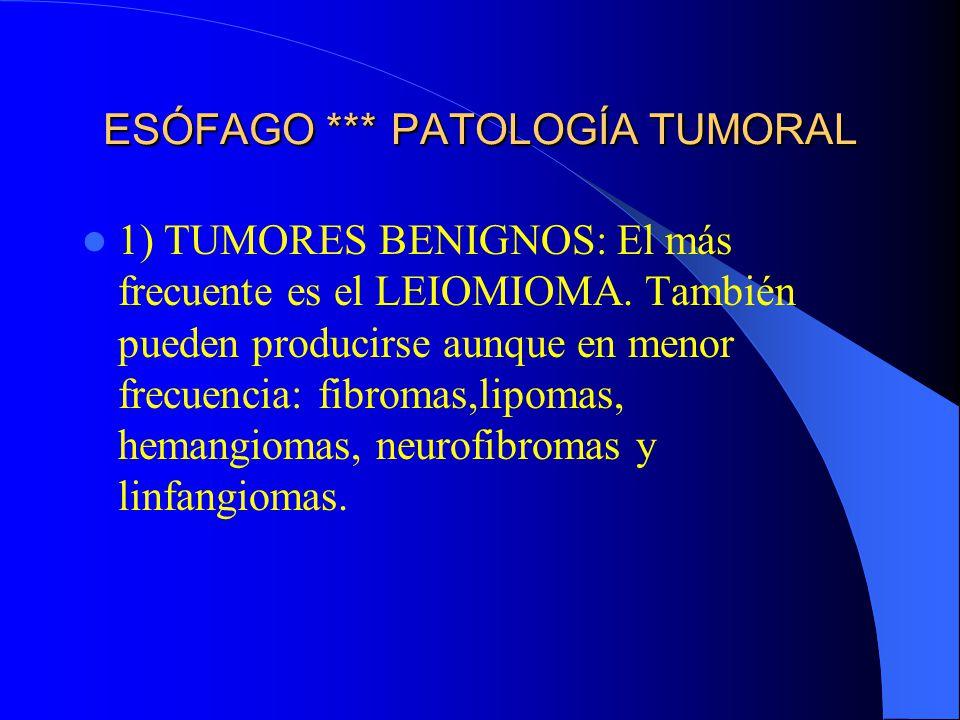 ESÓFAGO *** PATOLOGÍA TUMORAL 1) TUMORES BENIGNOS: El más frecuente es el LEIOMIOMA. También pueden producirse aunque en menor frecuencia: fibromas,li