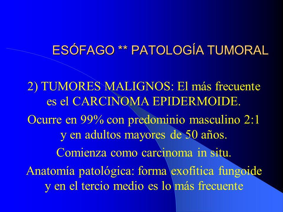 ESÓFAGO ** PATOLOGÍA TUMORAL 2) TUMORES MALIGNOS: El más frecuente es el CARCINOMA EPIDERMOIDE. Ocurre en 99% con predominio masculino 2:1 y en adulto