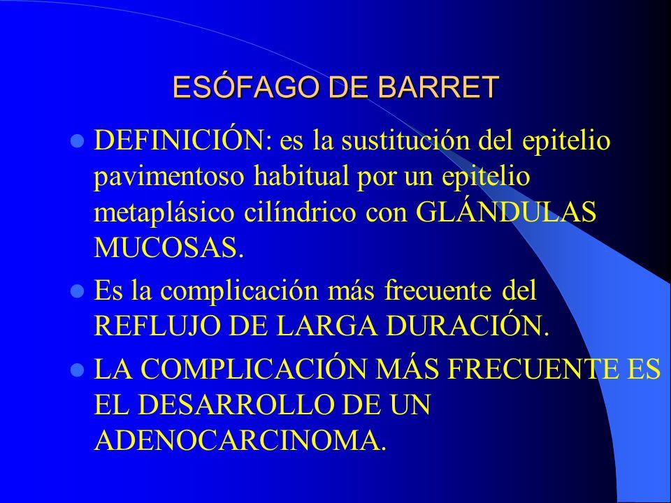 ESÓFAGO DE BARRET DEFINICIÓN: es la sustitución del epitelio pavimentoso habitual por un epitelio metaplásico cilíndrico con GLÁNDULAS MUCOSAS. Es la