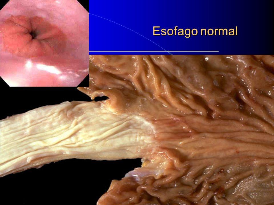 ESÓFAGO *** PATOLOGÍA TUMORAL 1) TUMORES BENIGNOS: El más frecuente es el LEIOMIOMA.