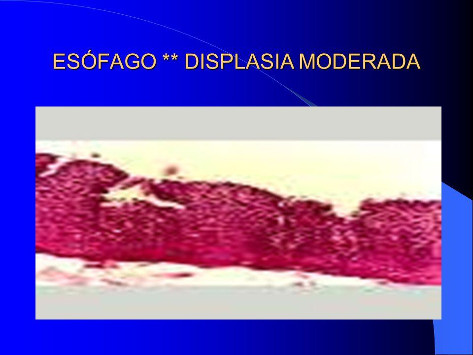 ESÓFAGO ** DISPLASIA MODERADA