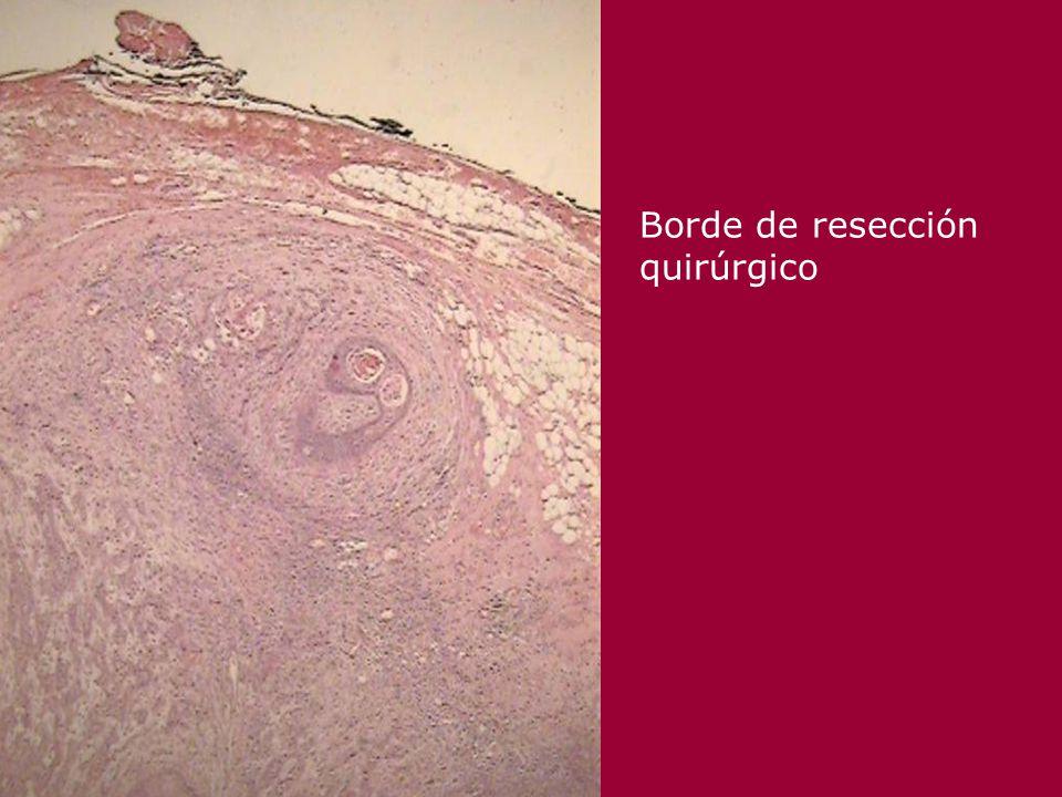 Oncogenes en Cáncer bucal Genes supresores tumorales p53 (normal) –Detiene el ciclo celular en G1 a S –Estimula la reparación del DNA dañado –Induce la apoptosis Mutaciones en exones 5-9 (core) presentes hasta en 60% de carcinomas escamosos Detección IHQ de p53