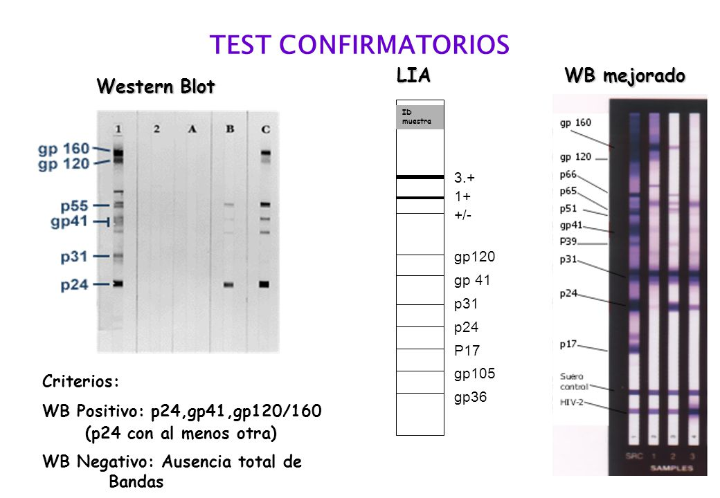 TEST CONFIRMATORIOS Western Blot LIA Criterios: WB Positivo: p24,gp41,gp120/160 (p24 con al menos otra) WB Negativo: Ausencia total de Bandas WB mejorado ID muestra 3.+ 1+ +/- gp120 gp 41 p31 p24 P17 gp105 gp36