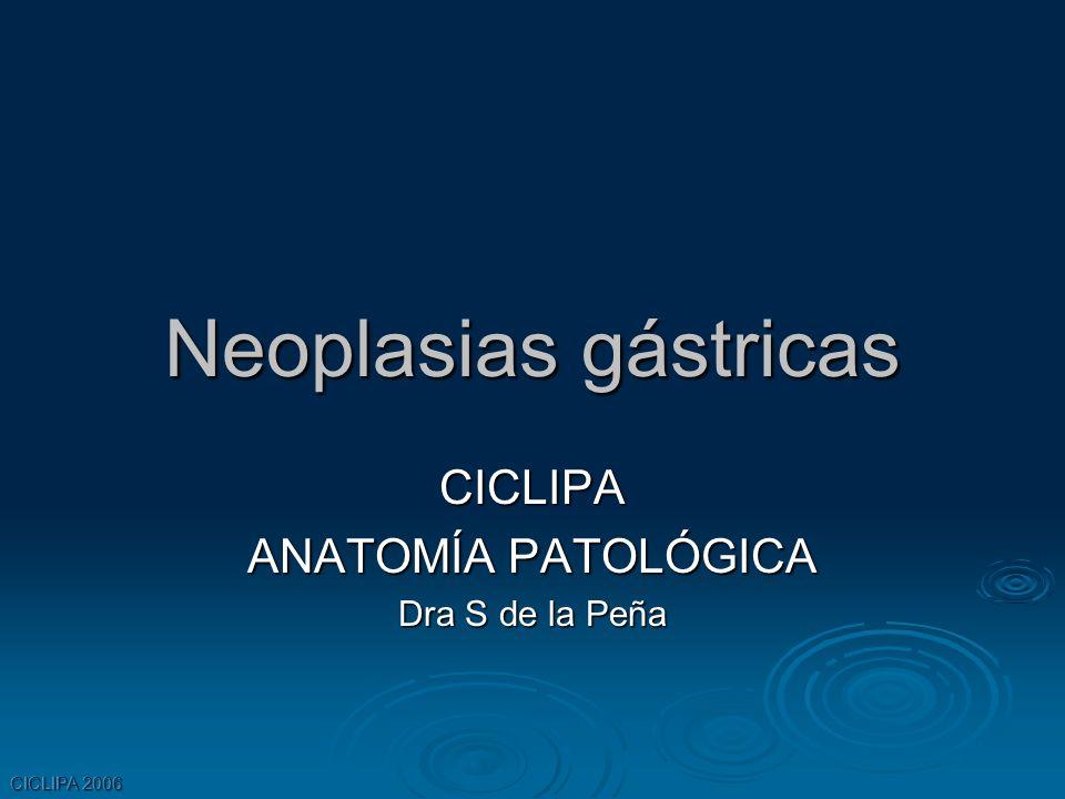 Neoplasias gástricas CICLIPA ANATOMÍA PATOLÓGICA Dra S de la Peña