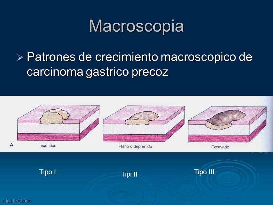 CICLIPA 2006 Macroscopia Patrones de crecimiento macroscopico de carcinoma gastrico precoz Patrones de crecimiento macroscopico de carcinoma gastrico