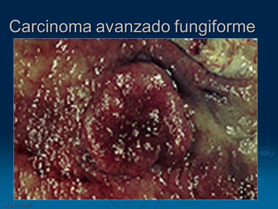 CICLIPA 2006 Carcinoma avanzado fungiforme
