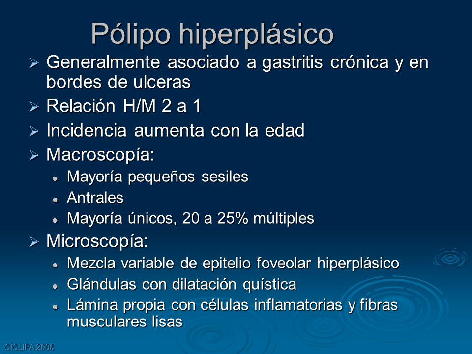 CICLIPA 2006 Pólipo hiperplásico Generalmente asociado a gastritis crónica y en bordes de ulceras Generalmente asociado a gastritis crónica y en borde