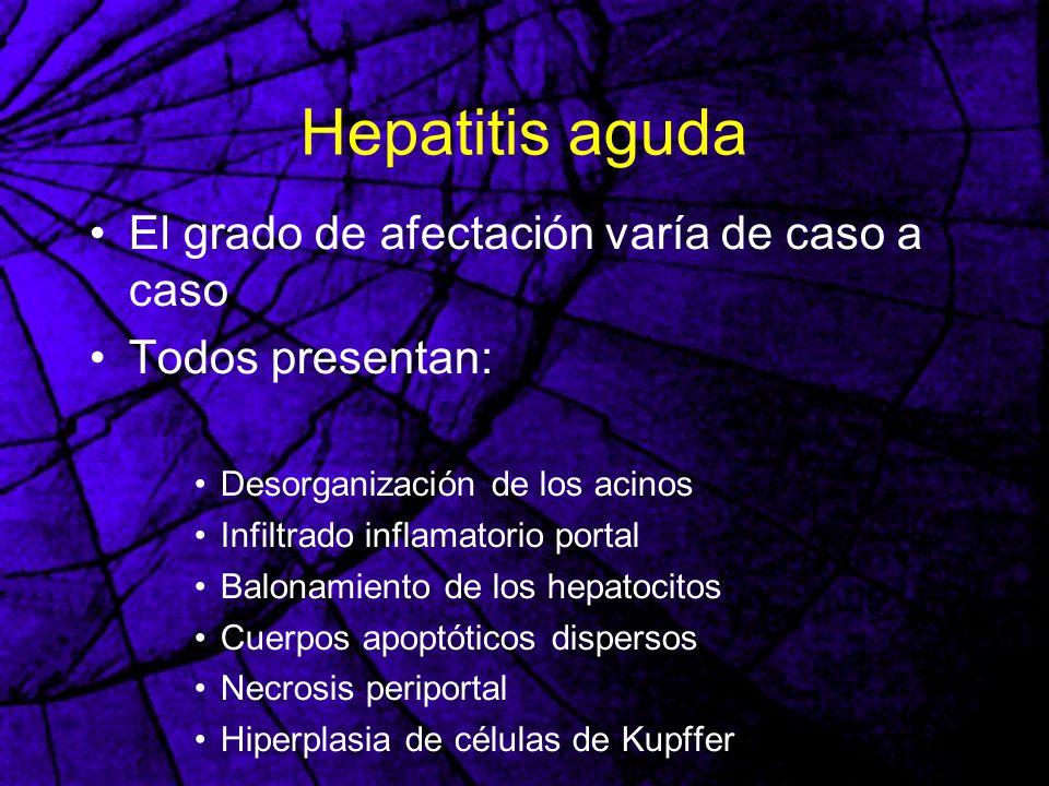 Hepatitis aguda El grado de afectación varía de caso a caso Todos presentan: Desorganización de los acinos Infiltrado inflamatorio portal Balonamiento