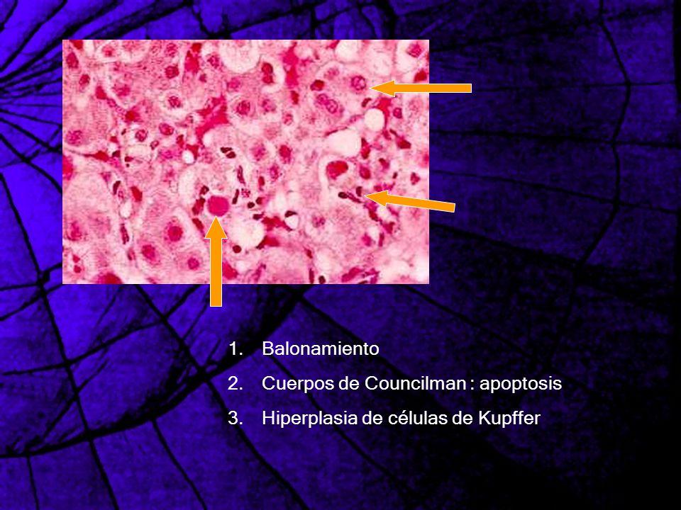 1.Balonamiento 2.Cuerpos de Councilman : apoptosis 3.Hiperplasia de células de Kupffer