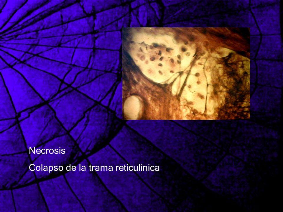 Necrosis Colapso de la trama reticulínica
