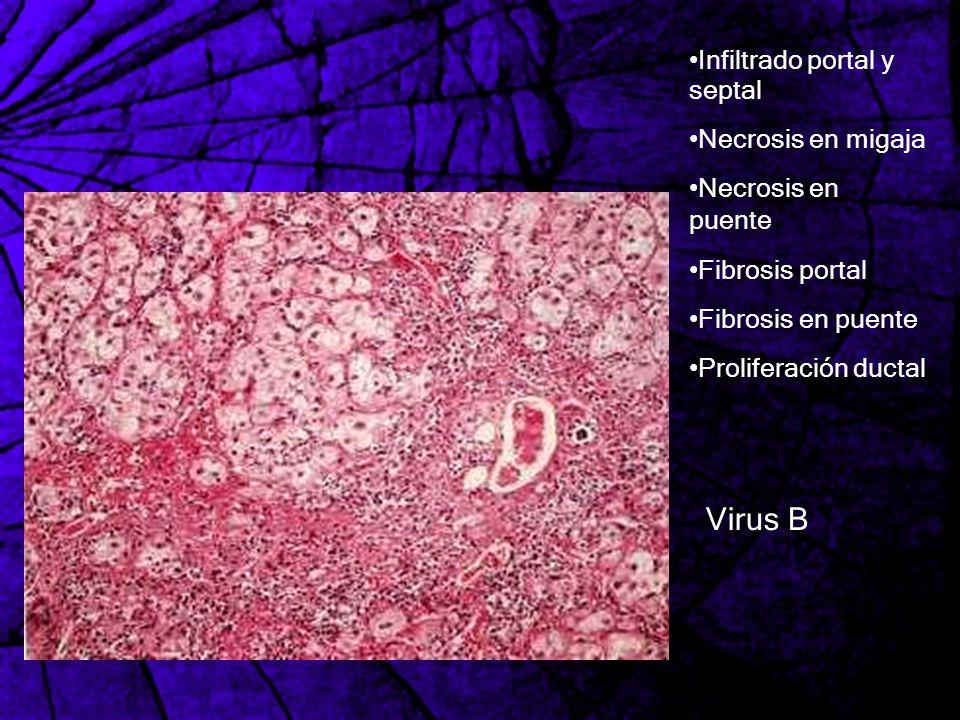 Infiltrado portal y septal Necrosis en migaja Necrosis en puente Fibrosis portal Fibrosis en puente Proliferación ductal Virus B