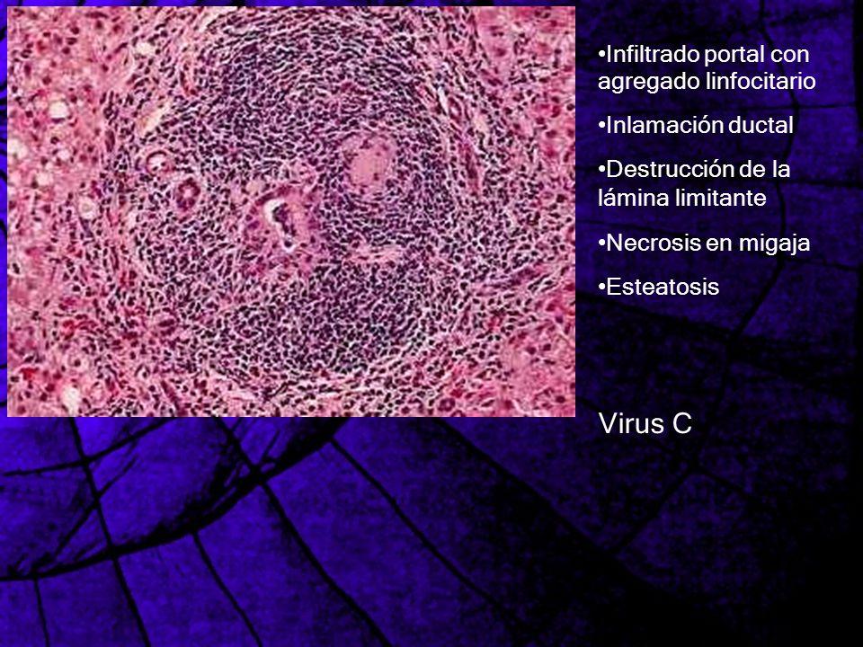 Infiltrado portal con agregado linfocitario Inlamación ductal Destrucción de la lámina limitante Necrosis en migaja Esteatosis Virus C