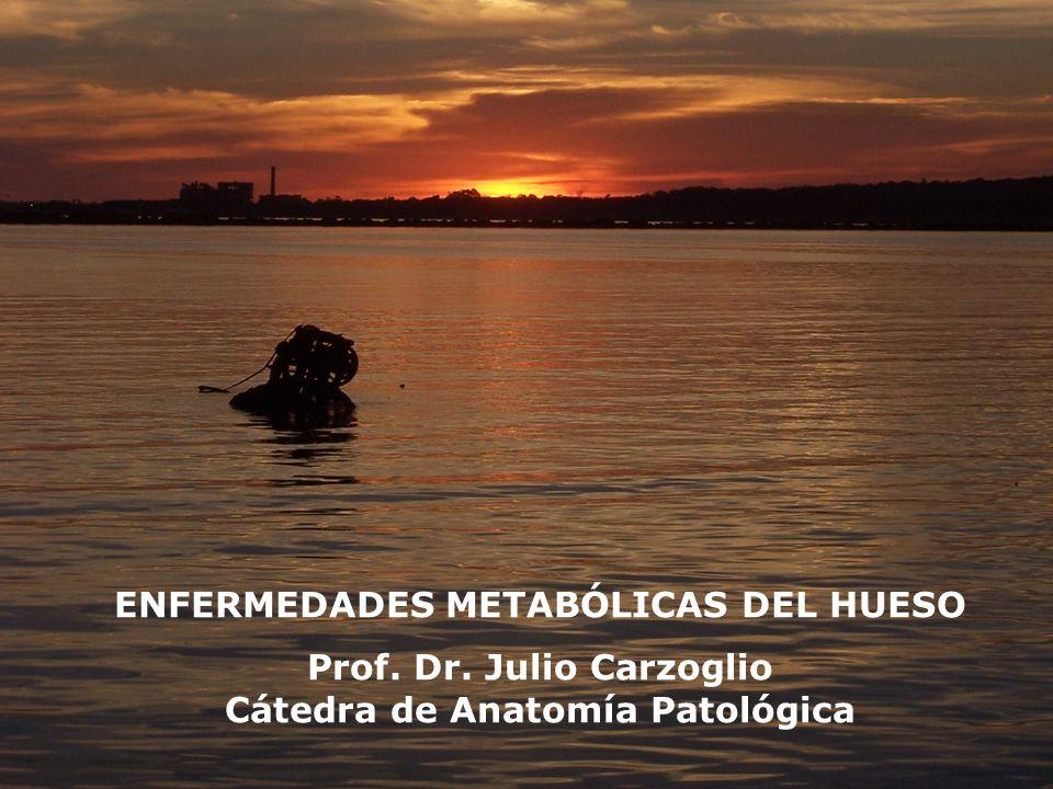 ENFERMEDADES METABÓLICAS DEL HUESO Prof. Dr. Julio Carzoglio Cátedra de Anatomía Patológica