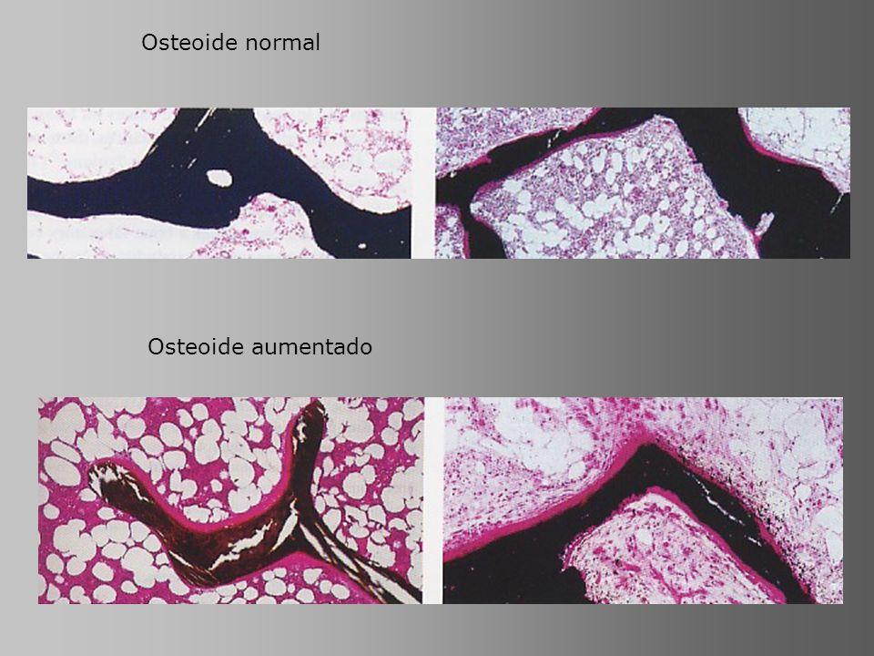 Osteoide normal Osteoide aumentado