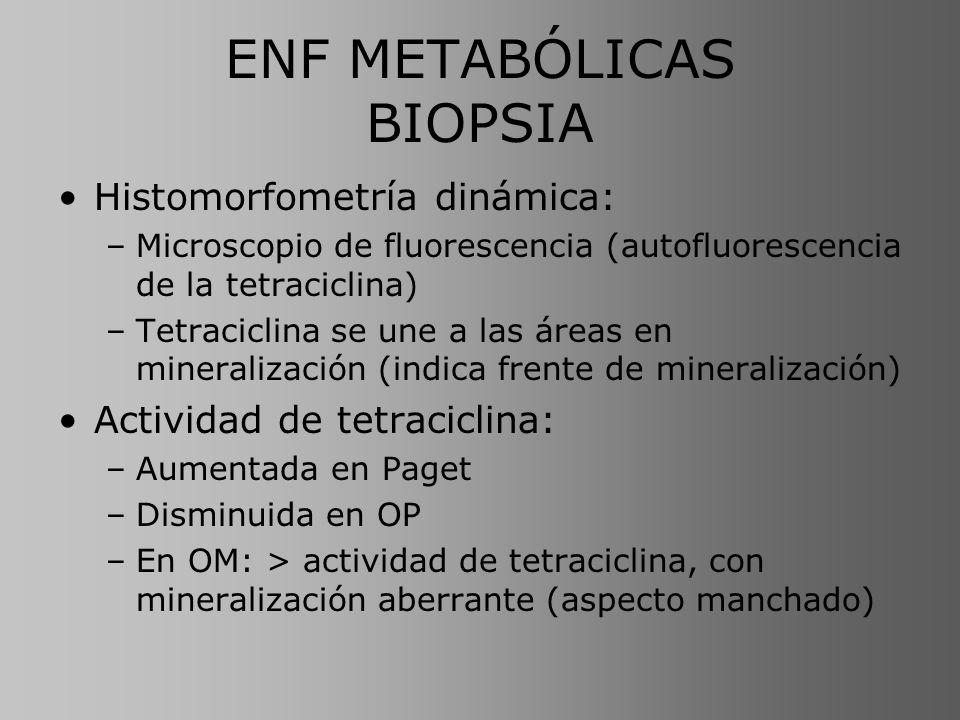 ENF METABÓLICAS BIOPSIA Histomorfometría dinámica: –Microscopio de fluorescencia (autofluorescencia de la tetraciclina) –Tetraciclina se une a las áre