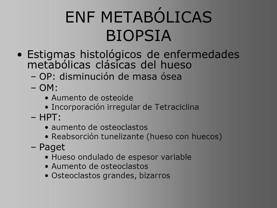 ENF METABÓLICAS BIOPSIA Estigmas histológicos de enfermedades metabólicas clásicas del hueso –OP: disminución de masa ósea –OM: Aumento de osteoide In
