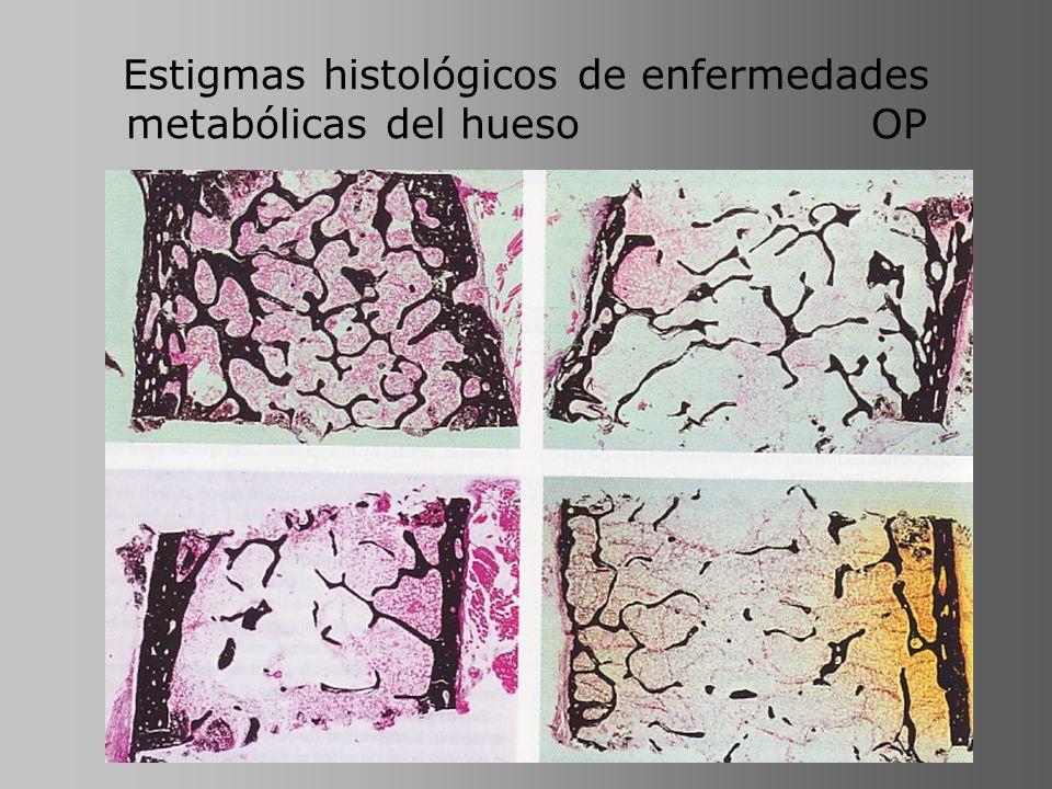 Estigmas histológicos de enfermedades metabólicas del hueso OP