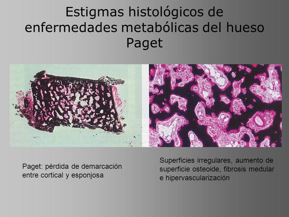 Estigmas histológicos de enfermedades metabólicas del hueso Paget Paget: pérdida de demarcación entre cortical y esponjosa Superficies irregulares, au