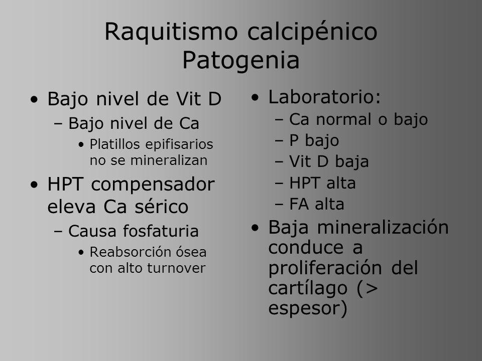 Raquitismo calcipénico Patogenia Bajo nivel de Vit D –Bajo nivel de Ca Platillos epifisarios no se mineralizan HPT compensador eleva Ca sérico –Causa