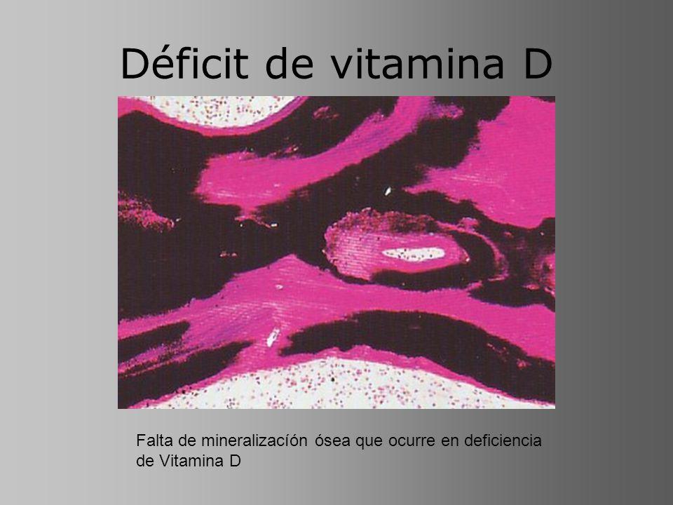 Déficit de vitamina D Falta de mineralizacíón ósea que ocurre en deficiencia de Vitamina D