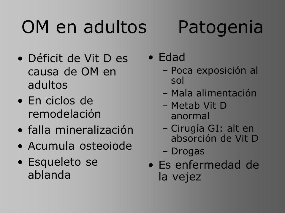 OM en adultos Patogenia Déficit de Vit D es causa de OM en adultos En ciclos de remodelación falla mineralización Acumula osteoiode Esqueleto se ablan
