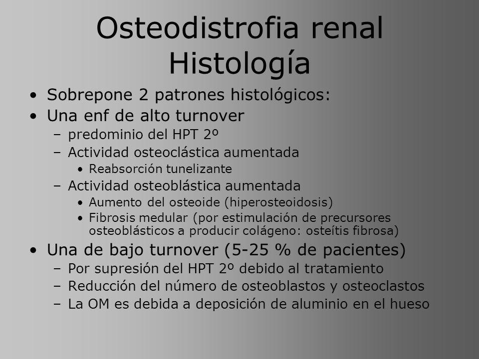 Osteodistrofia renal Histología Sobrepone 2 patrones histológicos: Una enf de alto turnover –predominio del HPT 2º –Actividad osteoclástica aumentada