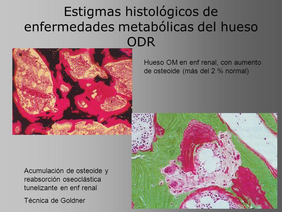 Estigmas histológicos de enfermedades metabólicas del hueso ODR Hueso OM en enf renal, con aumento de osteoide (más del 2 % normal) Acumulación de ost