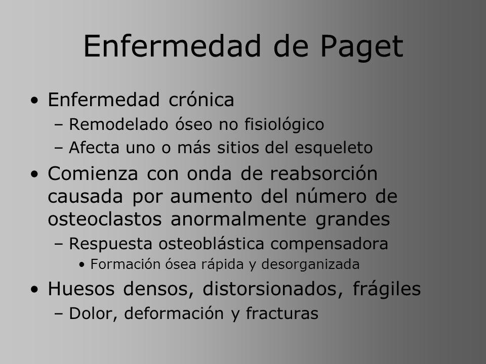 Enfermedad de Paget Enfermedad crónica –Remodelado óseo no fisiológico –Afecta uno o más sitios del esqueleto Comienza con onda de reabsorción causada