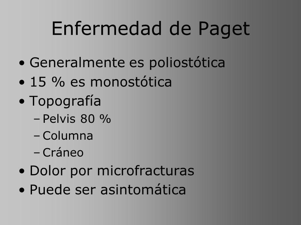 Enfermedad de Paget Generalmente es poliostótica 15 % es monostótica Topografía –Pelvis 80 % –Columna –Cráneo Dolor por microfracturas Puede ser asint