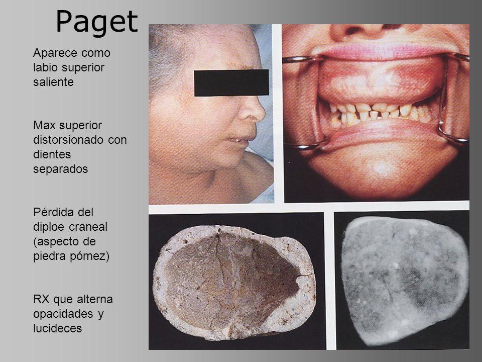 Paget Aparece como labio superior saliente Max superior distorsionado con dientes separados Pérdida del diploe craneal (aspecto de piedra pómez) RX qu