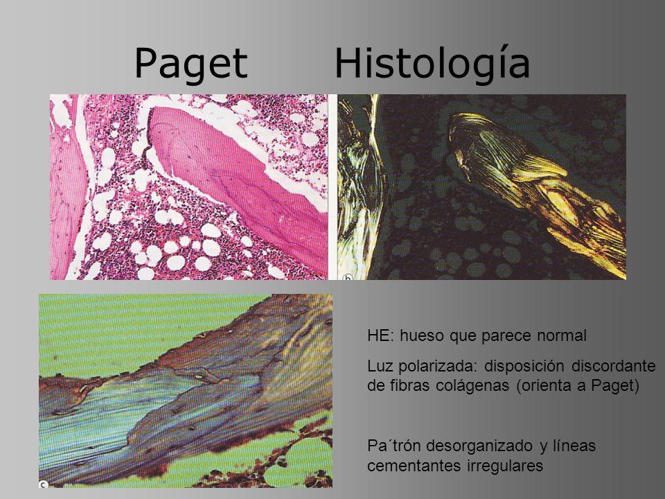Paget Histología HE: hueso que parece normal Luz polarizada: disposición discordante de fibras colágenas (orienta a Paget) Pa´trón desorganizado y lín