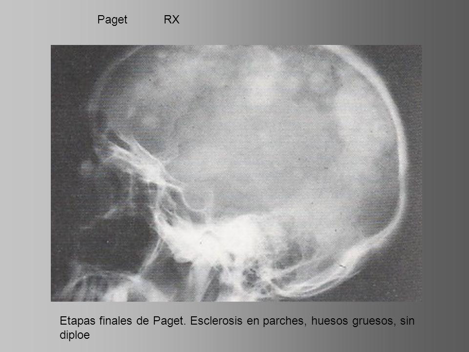 Paget RX Etapas finales de Paget. Esclerosis en parches, huesos gruesos, sin diploe