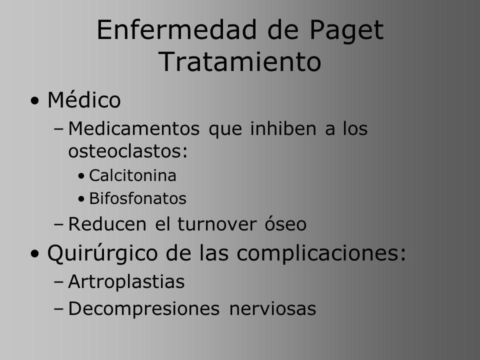 Enfermedad de Paget Tratamiento Médico –Medicamentos que inhiben a los osteoclastos: Calcitonina Bifosfonatos –Reducen el turnover óseo Quirúrgico de