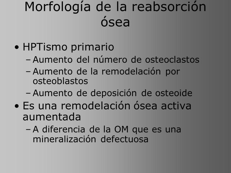 Morfología de la reabsorción ósea HPTismo primario –Aumento del número de osteoclastos –Aumento de la remodelación por osteoblastos –Aumento de deposi