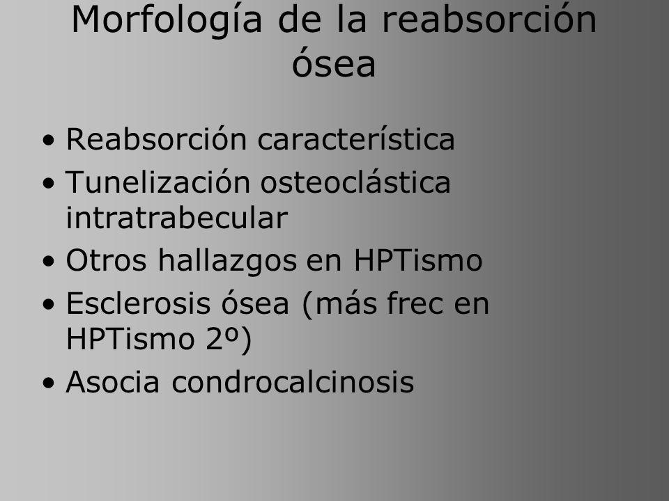 Morfología de la reabsorción ósea Reabsorción característica Tunelización osteoclástica intratrabecular Otros hallazgos en HPTismo Esclerosis ósea (má