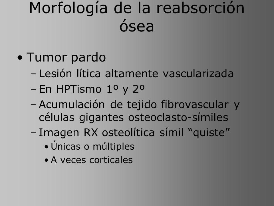 Morfología de la reabsorción ósea Tumor pardo –Lesión lítica altamente vascularizada –En HPTismo 1º y 2º –Acumulación de tejido fibrovascular y célula