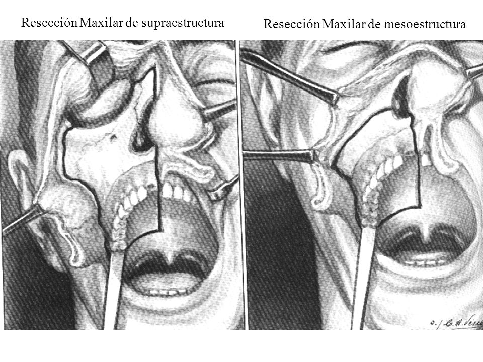 Resección Maxilar de supraestructura Resección Maxilar de mesoestructura