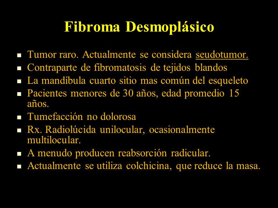 Fibroma Desmoplásico Tumor raro.Actualmente se considera seudotumor.