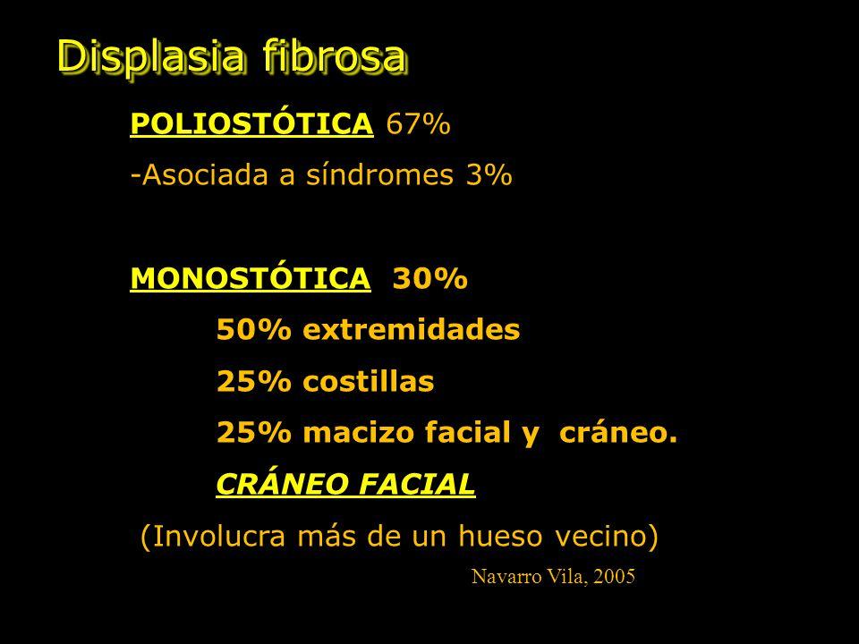 Displasia fibrosa POLIOSTÓTICA 67% -Asociada a síndromes 3% MONOSTÓTICA 30% 50% extremidades 25% costillas 25% macizo facial y cráneo.
