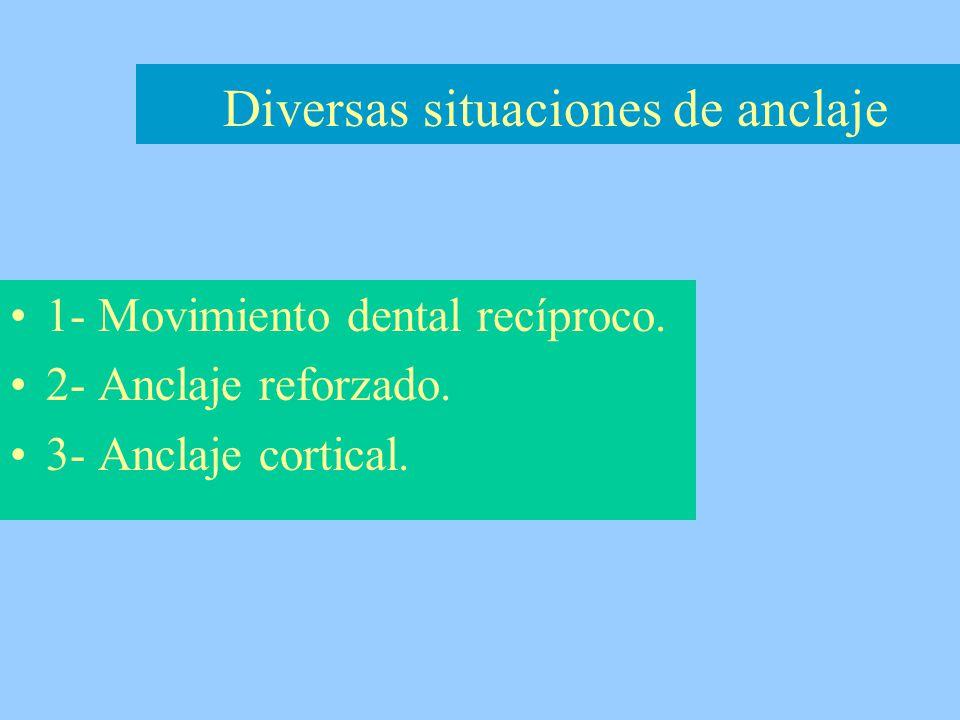 1- Movimiento dental recíproco. 2- Anclaje reforzado. 3- Anclaje cortical. Diversas situaciones de anclaje