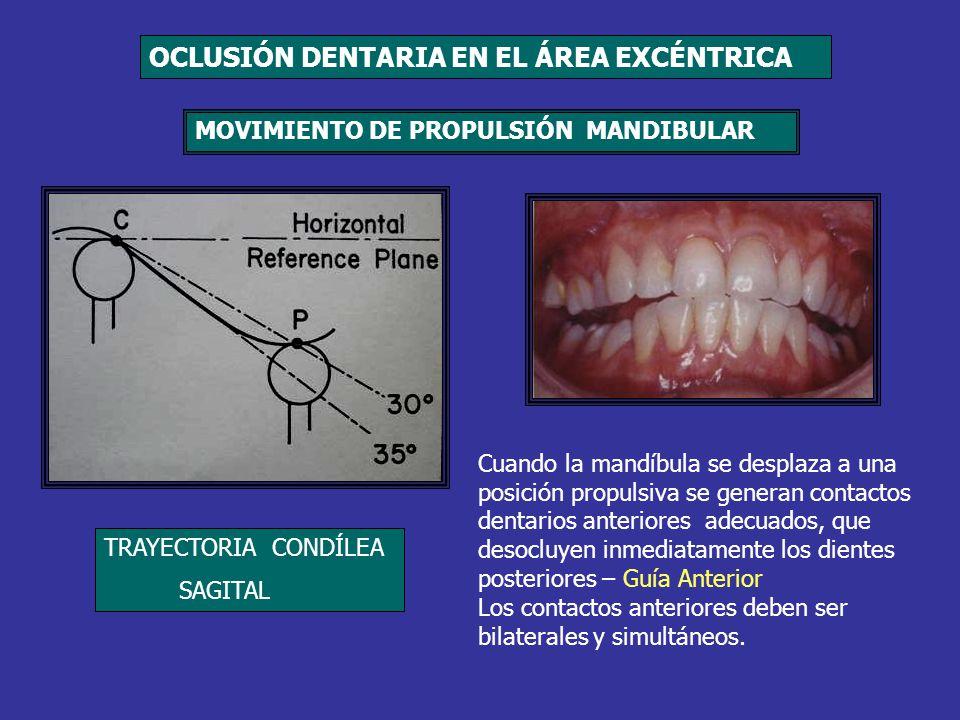 Cuando la mandíbula se desplaza a una posición propulsiva se generan contactos dentarios anteriores adecuados, que desocluyen inmediatamente los dient